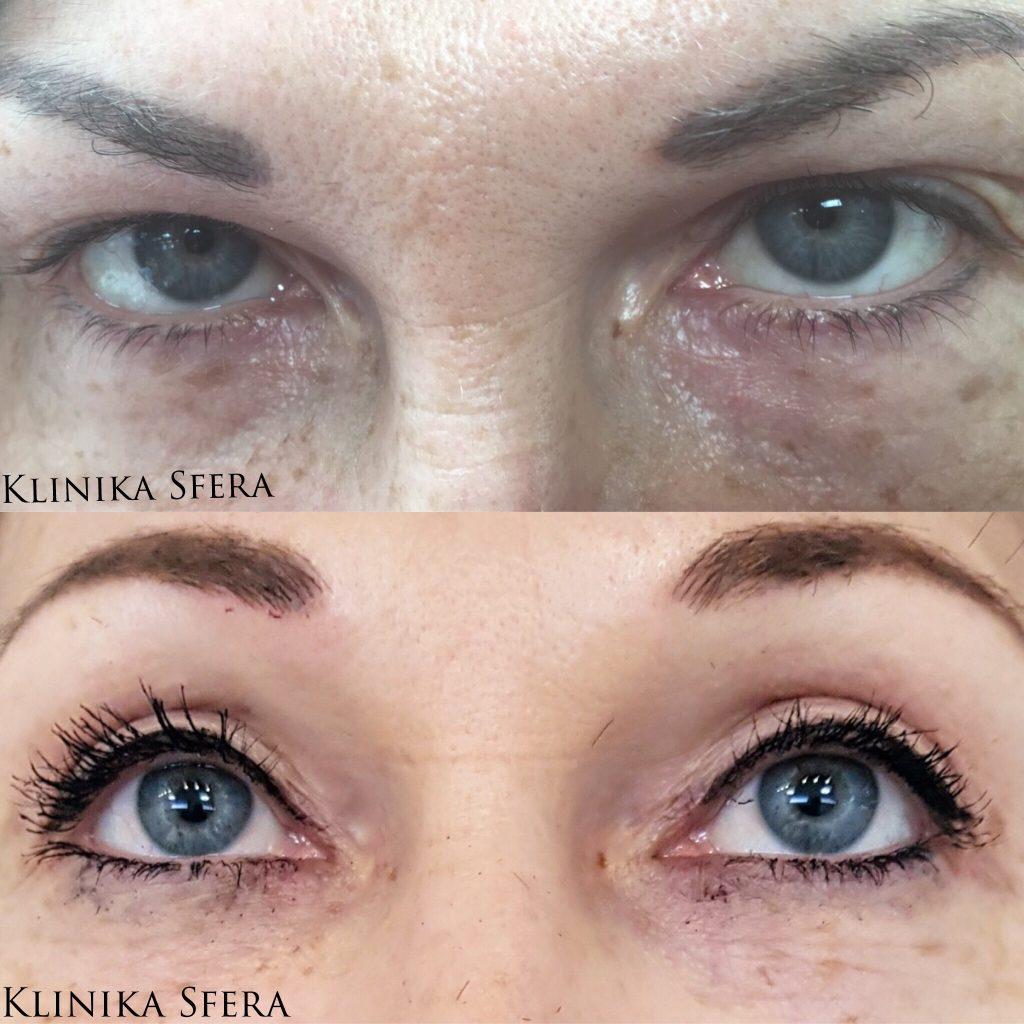 http://www.klinikasfera.pl/wp-content/uploads/2018/05/strona-plastyka-powiek-przed-i-po.jpg